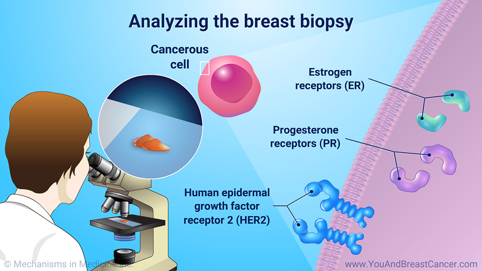 Analyzing the breast biopsy