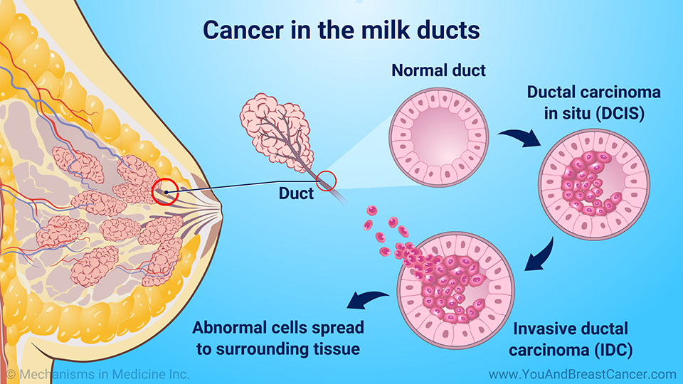 Cancer in the milk ducts