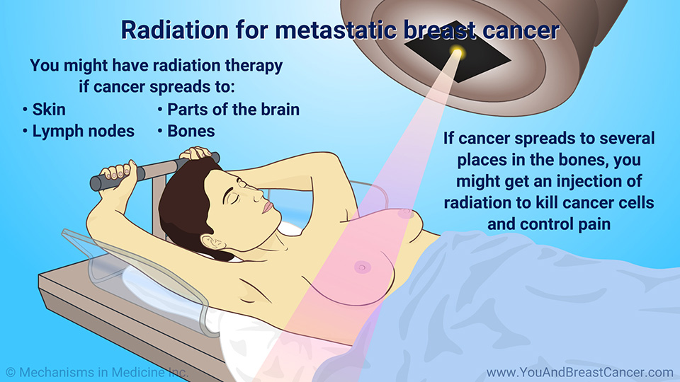 Radiation for metastatic breast cancer