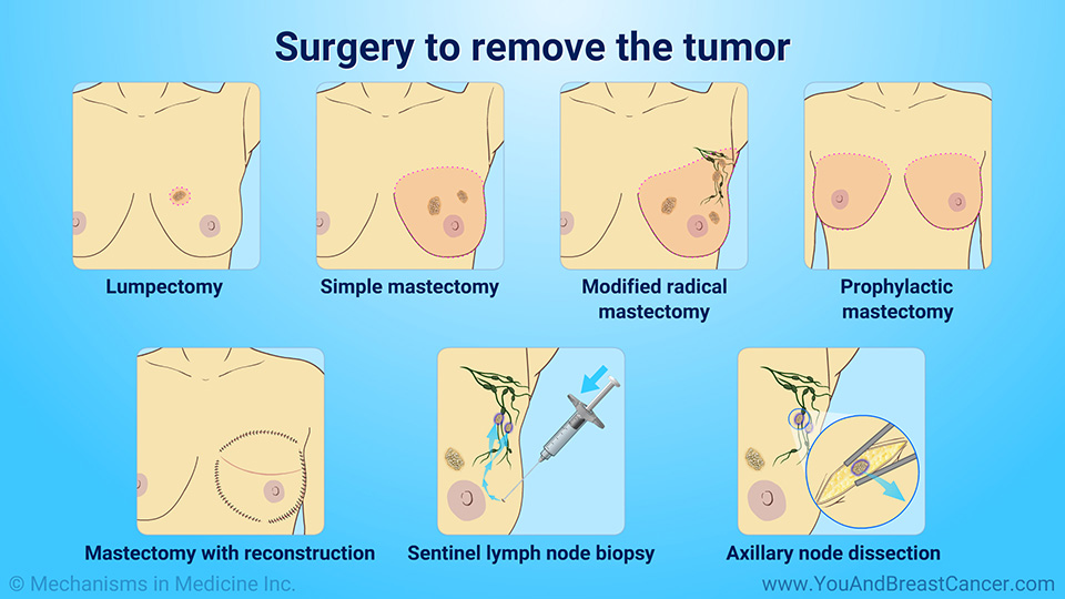 Surgery to remove the tumor