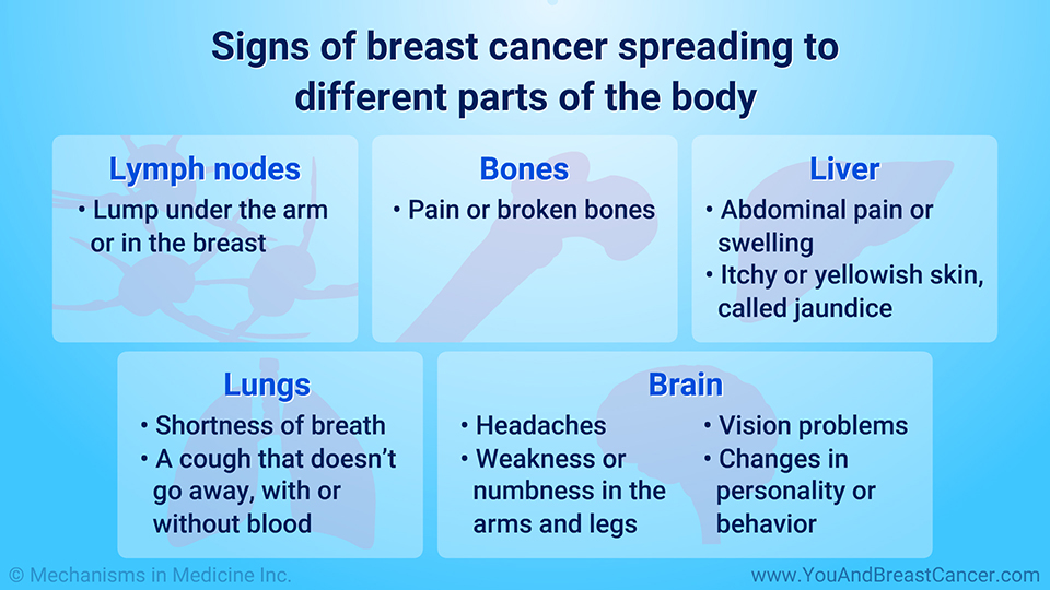 Symptoms of metastatic breast cancer