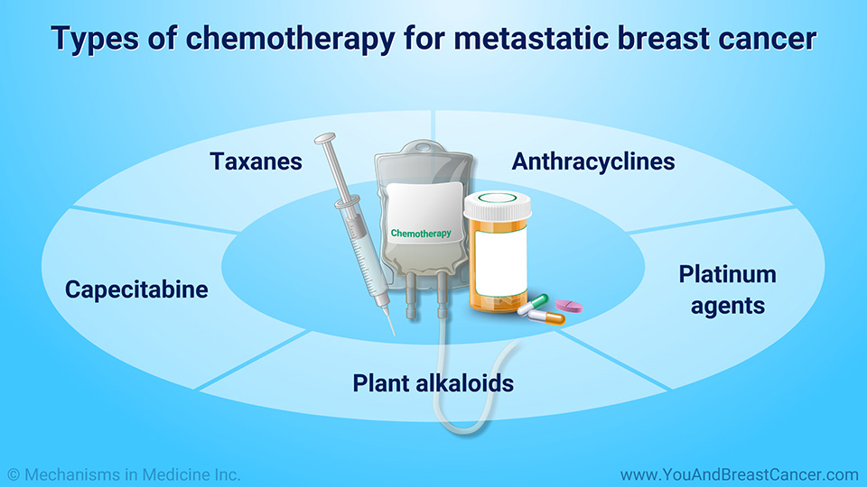 Types of chemotherapy for metastatic breast cancer